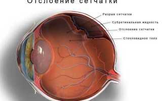 Эпиретинальный фиброз глаза что это такое