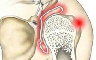 Артрит плечевого сустава симптомы и лечение в домашних условиях