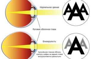 Капли для глаз при близорукости