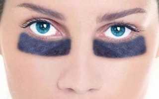 Как быстро убрать темные круги под глазами в домашних условиях