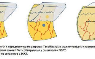 Отслойка сетчатки регматогенная