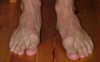 Вальгусная деформация стопы у взрослых лечение