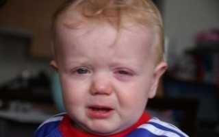 Температура и конъюнктивит у ребенка