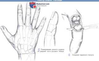 Ампутация пальцев стопы