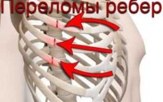 Обезболивающее при переломе ребер