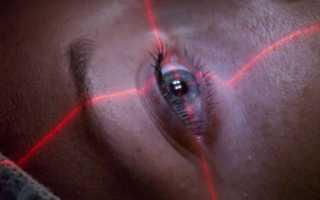 Как делают операцию на глаза