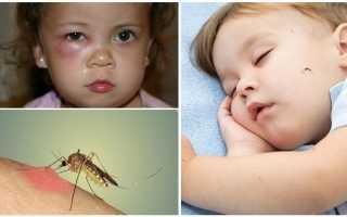 Ребенка укусил в веко комар