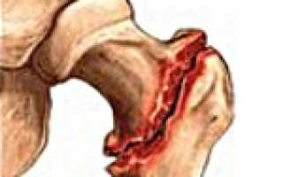 Чрезвертельный перелом бедра