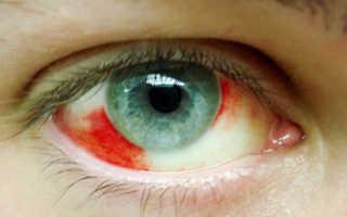 Что делать если в глазу лопнул сосуд
