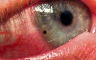 Что делать если в глаз что то попало и больно моргать