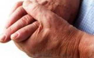 Мази от артрита пальцев рук