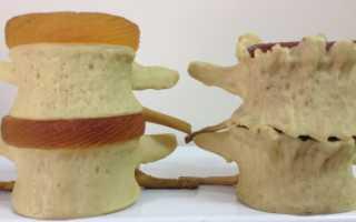Дегенеративно дистрофические изменения грудного отдела позвоночника