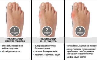 Удаление шишек на ногах лазером