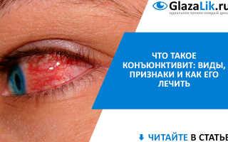Конъюнктивит глаз симптомы