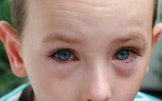 Как выглядит конъюнктивит у детей