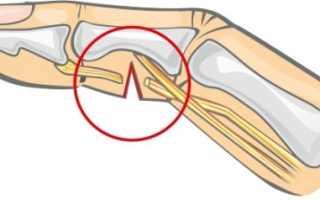 Разрыв сухожилия на пальце руки