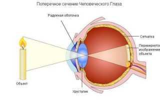 Виды нарушения зрения