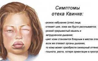 Глаз опух у ребенка