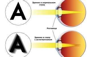 Астигматизм глаза что это такое