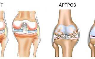 Какой врач лечит артрит и артроз суставов