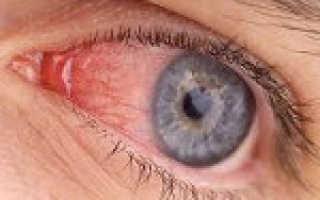 Красные глаза симптом каких болезней