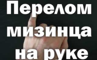 Сколько носить гипс при переломе пальца руки