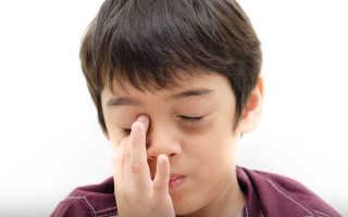 Мешки под глазами у ребенка причины
