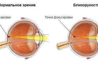 Заболевания глаз у людей симптомы