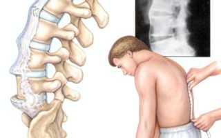 Реактивный артрит симптомы и лечение у женщин
