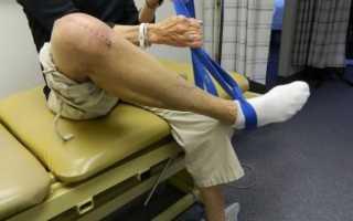 Реабилитация после замены сустава
