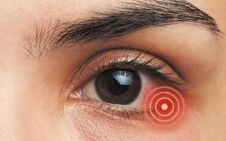 Глаза герпес симптомы