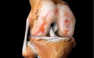 Упражнения при артрите коленного сустава