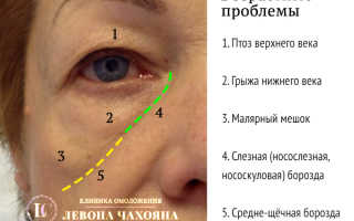 Убрать мешки под глазами косметология