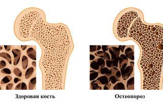Остеопороз какой врач
