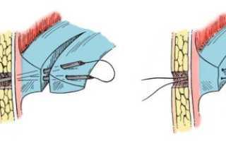 Восстановление после операции на мениск