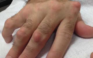 Шишка на пальце руки