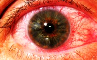 Воспаление радужной оболочки глаза