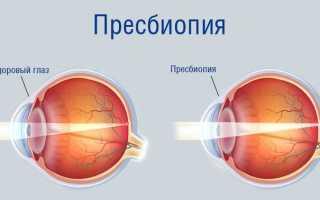 Пресбиопия глаз что это такое