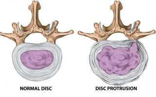 Протрузия шейного отдела позвоночника лечение