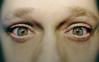 Сухость и жжение в глазах