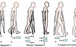 Упражнения после эндопротезирования