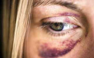 Ушиб глаза лечение
