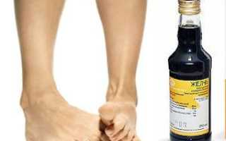 Лечение пяточной шпоры медицинской желчью
