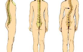 Гимнастика при сколиозе грудного отдела