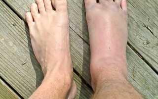 Нога отекает после перелома