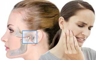 Челюстно лицевой артрит