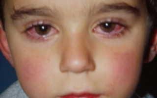 Аллергия на веках глаз причины