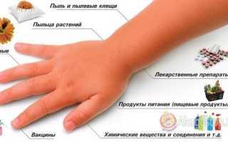 У ребенка аллергия на глазах