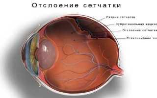 Расслоение сетчатки глаза