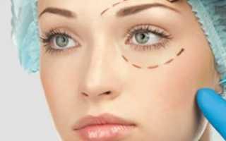 Трансконъюнктивальная блефаропластика нижних век